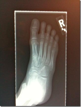 Maddie's Toes